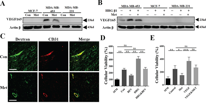Inhibition of VEGFA signaling was involved in the mechanism of metformin-induced anti-angiogenesis and reduction of vessel leakage.