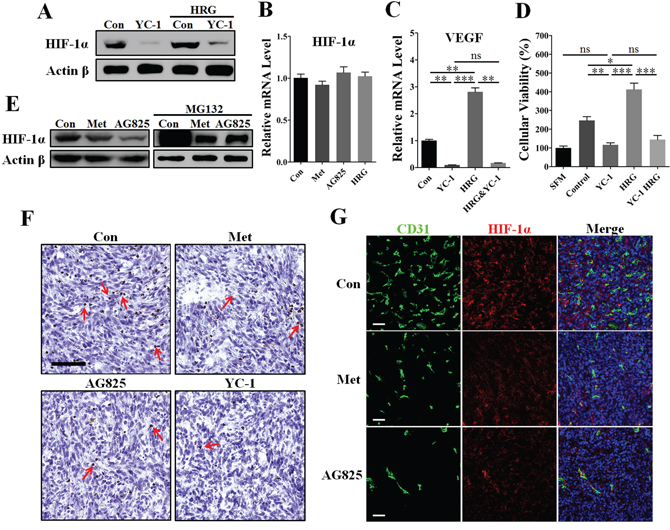 Inhibition of HIF-1α greatly contributed to metformin-induced VEGF down-regulation in the presence of HER2 signaling.