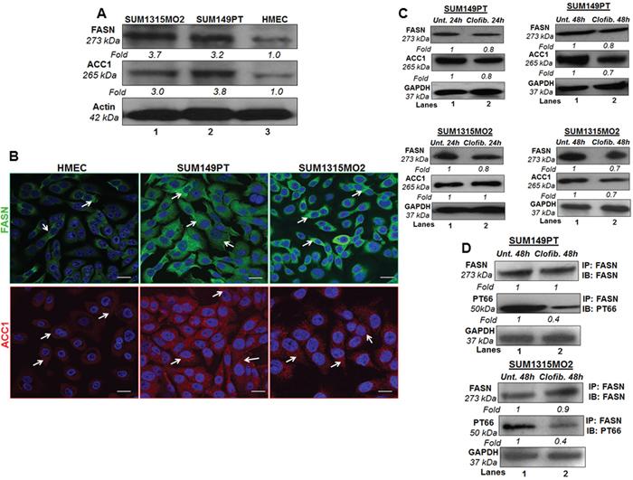 Effect of clofibrate treatment on lipogenic enzymes.