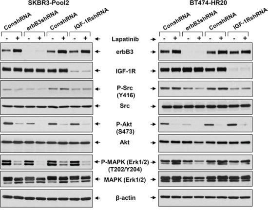 The erbB3 receptor and IGF-1R initiates activation of distinct downstream signaling pathways in trastzumab-resistant breast cancer cells.