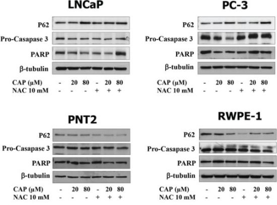 Apoptosis induction by capsaicin in prostate cancer cells but not in normal prostate cells.