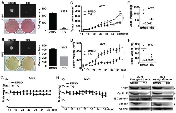Tigecycline suppressed tumor growth in xenograft model of human melanoma cells.