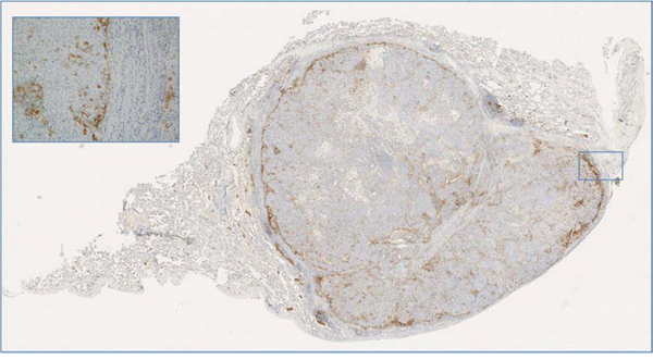 A case of metastatic phyllodes tumor to the lung with peripheral PD-L1 expression adjacent to the inflammatory cells and normal lung parenchyma; of note this case harbored RB1 gene mutation in both primary and metastatic tumor.