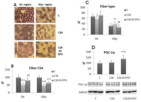 Exercise training and EPO counteract oxidative fiber atrophy and glycolytic shift stimulating PGC-1α expression.