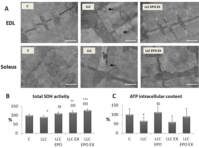 Exercise training and EPO restore mitochondrial morphology in LLC-bearing mice.