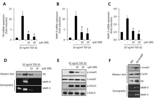 ZER suppresses TGF-β1-induced FN, MMP-2, and MMP-9 expression through the inhibition of smad3 activity.