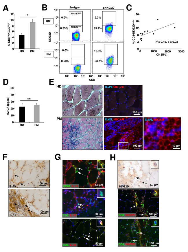 Alterations of the NKG2D – IL-15 signaling pathway in peripheral blood and muscle biopsies of polymyositis patients.