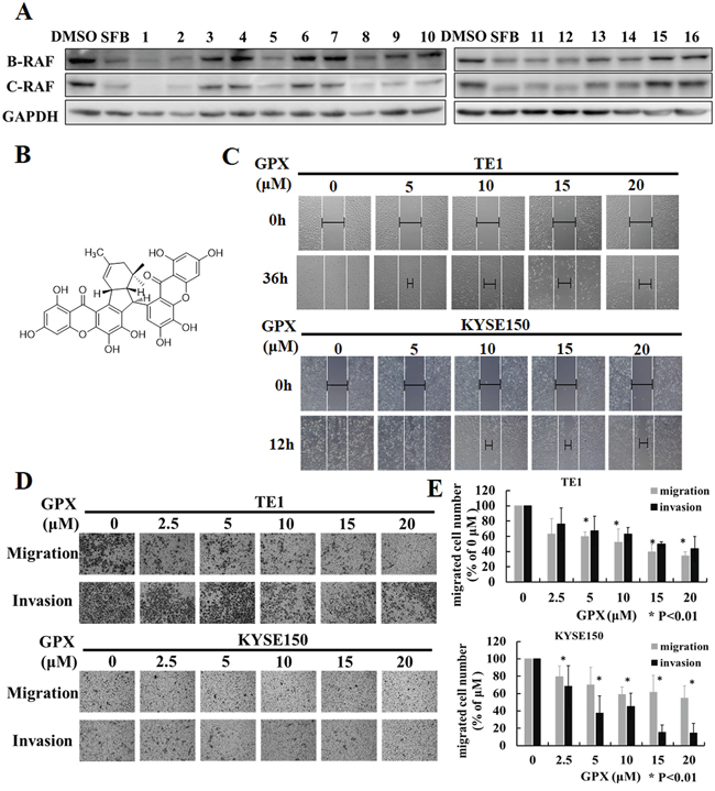 Griffipavixanthone (GPX) inhibits esophageal cancer cell migration and invasion.