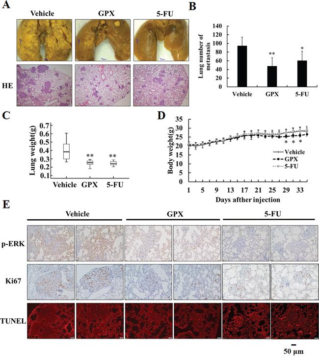 GPX prevents esophageal pulmonary metastasis in vivo.