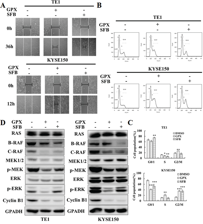 GPX exhibits similar effects on cell migration, cell cycle, and RAS-RAF-MEK-ERK cascades compared with Sorafenib.