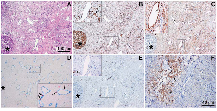 Hypoxia-related protein expression in an extrahepatic perihilar cholangiocarcinoma (Klatskin tumor) resection specimen.