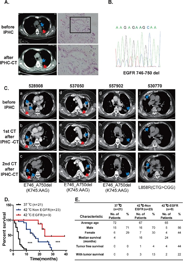 Lung cancers positive for EGFR mutation are sensitive to IPHC-CT treatment.