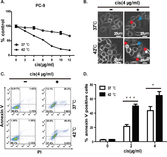 Hyperthermia synergizes cisplatin to induce apoptosis in EGFR mutant lung cancer cell line.