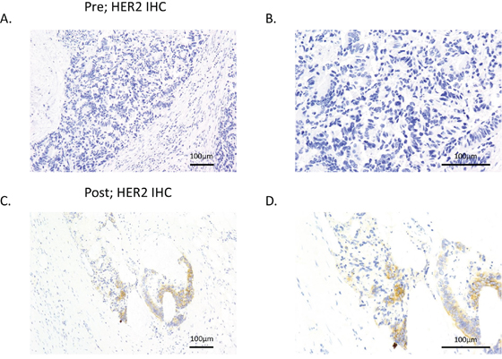 Figure 1. HER2 expression was increased after resistance to cetuximab was acquired.