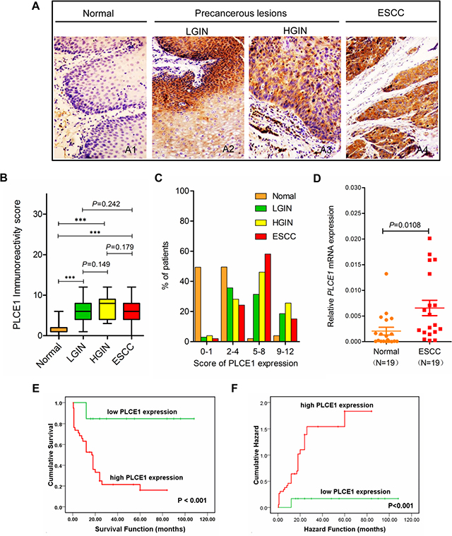 Increased PLCE1 protein expression is linked with ESCC aggressiveness and poor patient survival.