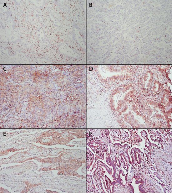 Staining of tumor infiltrating CD8+ T cells, β2-microglobulin, HLA-A, HLA-B/C and HLA-E in pulmonary adenocarcinoma.