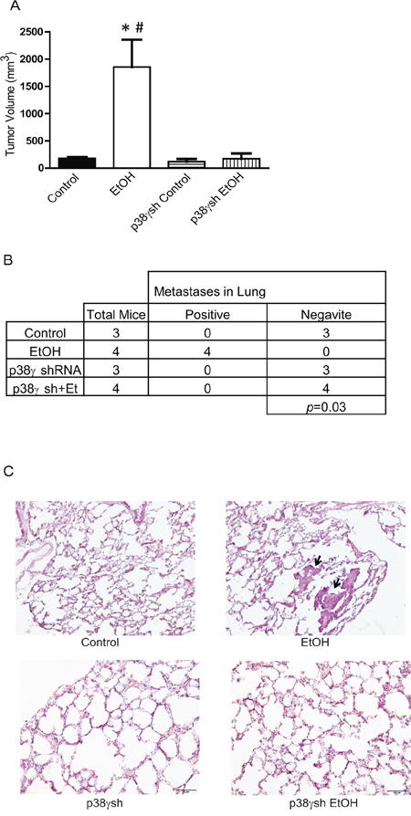 Effects of p38γ knock-down on ethanol-induced tumor growth and metastasis.