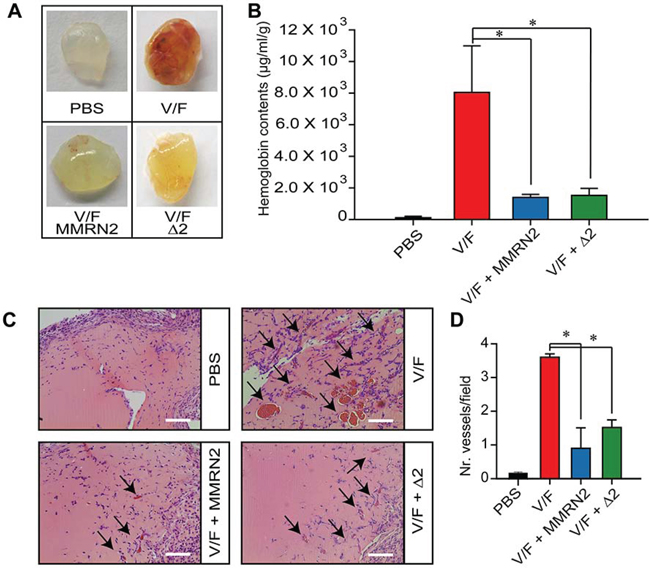 MMRN2 and the Δ2 deletion mutant impair the development of blood vessels in the in vivo Matrigel plug assay.
