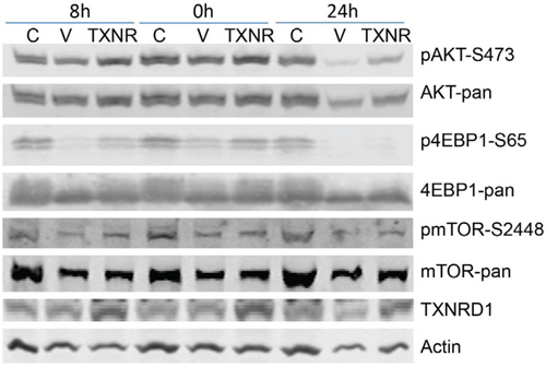Figure 5. Effect of TXNRD1 expression in auranofin medicated inhibition of PI3K/AKT/mTOR pathway.