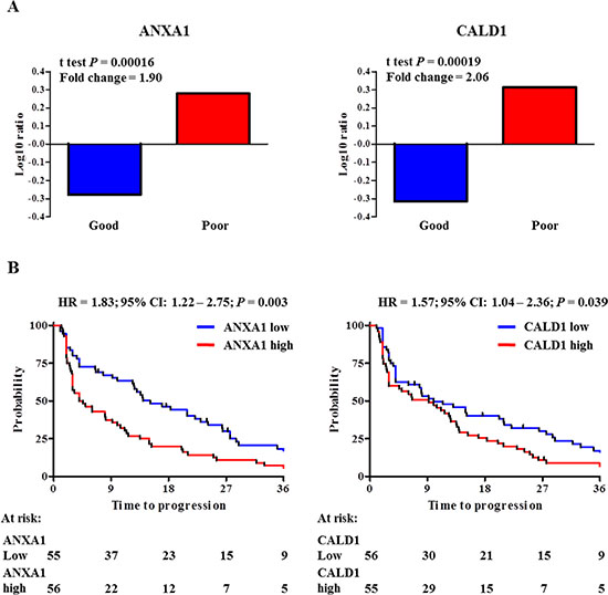 ANXA1 and CALD1 expression levels and survival analyses in MS cohorts.