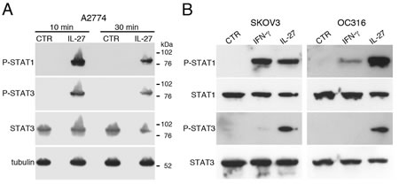 IL-27 induces STAT1 and STAT3 phosphorylation (P) in EOC cell lines