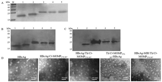 Expression of recombinant proteins and formation of HBcAg/MOMPm chimeric VLPs.