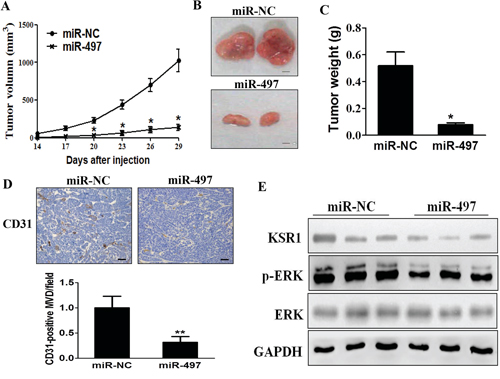 MiR-497 overexpression suppresses tumorigenesis and decreases KSR1 expression in tumor tissues.