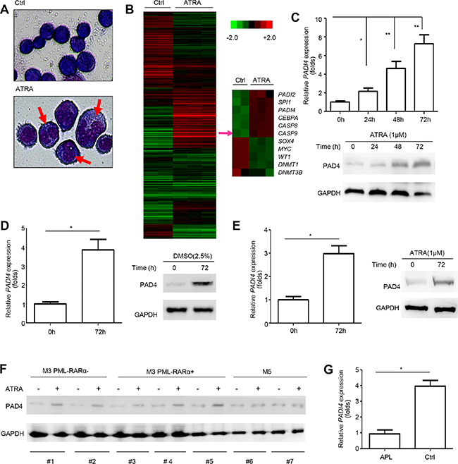 PAD4 expression increased during the differentiation of leukemia cells.