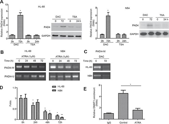 PADI4 promoter undergoes demethylation during ATRA-induced differentiation.