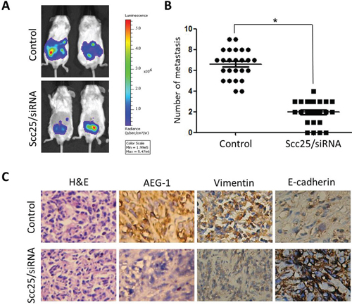 AEG-1 knockdown inhibited tumor metastasis in vivo