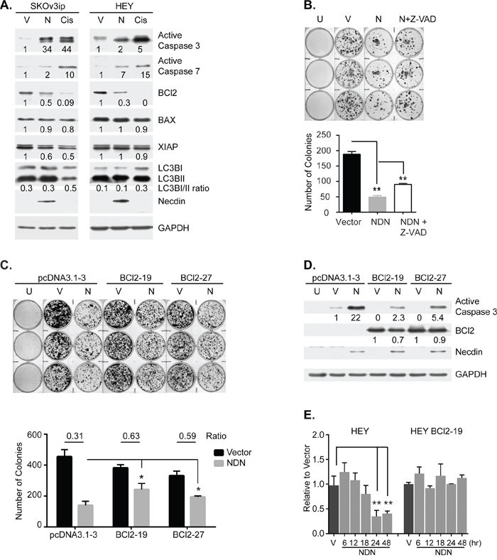 Necdin re-expression inhibits cell growth by inducing apoptosis.