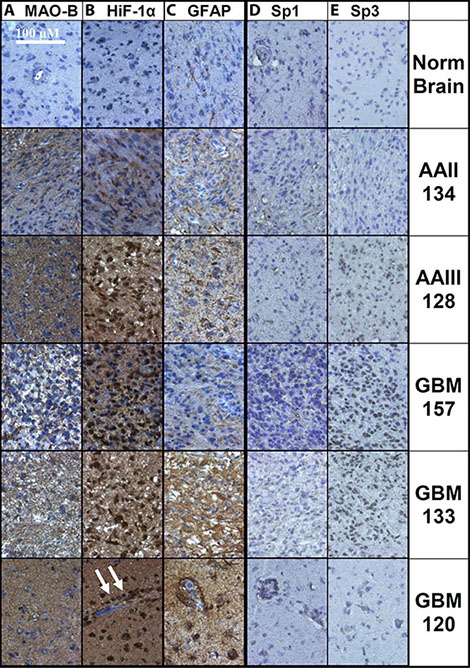 Immunohistochemical labeling of normal brain and glioma tissue.