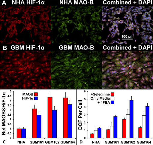 Comparison of MAOB expression, HiF-1α expression, and peroxide generation in response to a MAOB substrate in normal human astrocytes and glioma cells.
