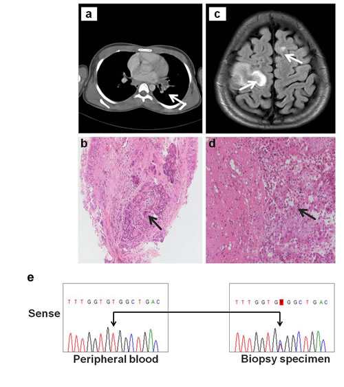 A novel HER3 somatic mutation in NSCLC.