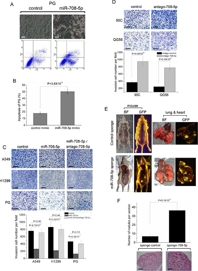 miR-708-5p induced cell apoptosis and suppressed invasive growth of lung cancer cells.