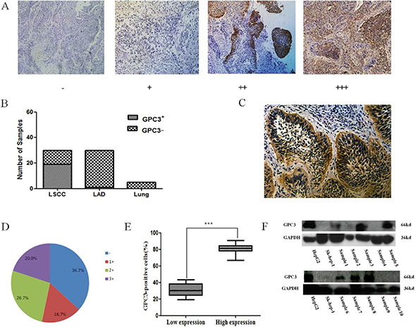 GPC3 expression in lung cancer tissues.