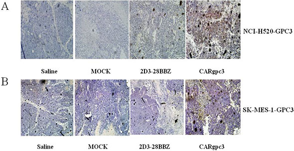 CARgpc3 T cells in GPC3-positive tumors.
