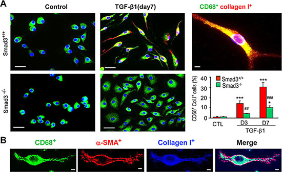 Smad3 is Required for Collagen Production by Transformed Macrophages in vitro.