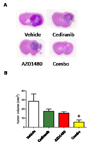 Figure3: STAT-3 blockade with cediranib reduces glioma volume.