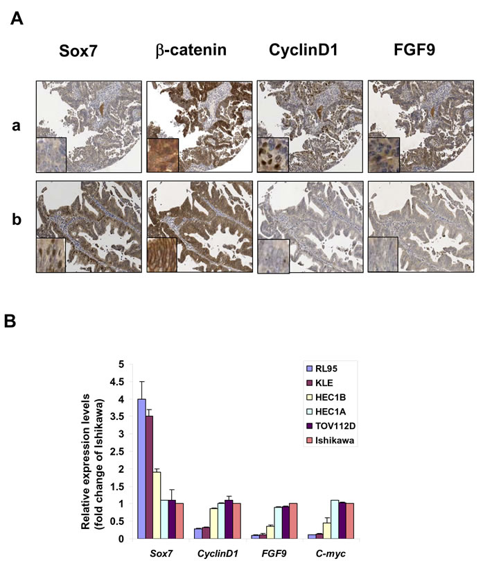 Sox7 is frequently underexpressed and inversely correlated with Wnt/β-catenin signaling in endometrial cancer.