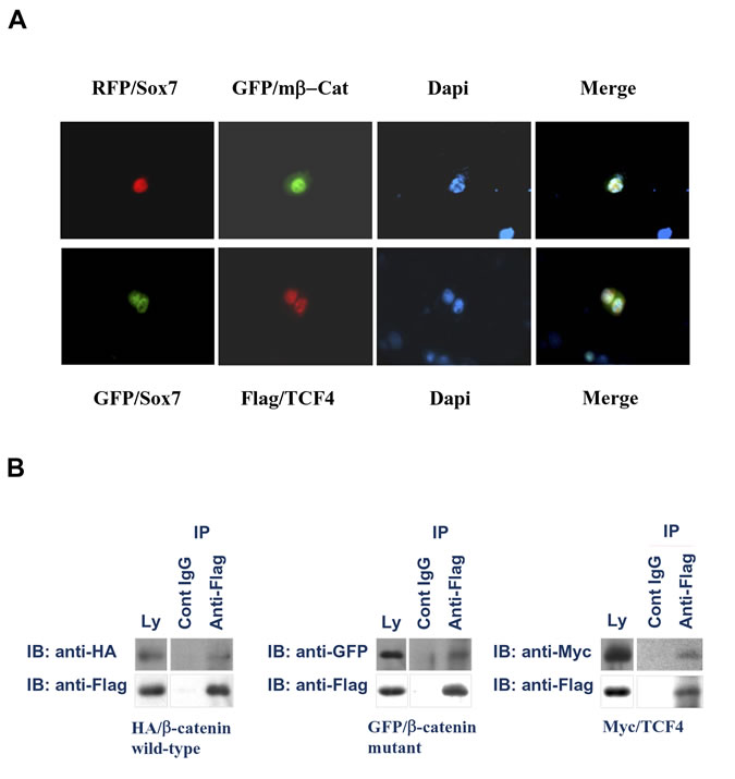 Sox7 interacts with β-catenin and TCF4 in the nucleus of endometrial cancer cells.