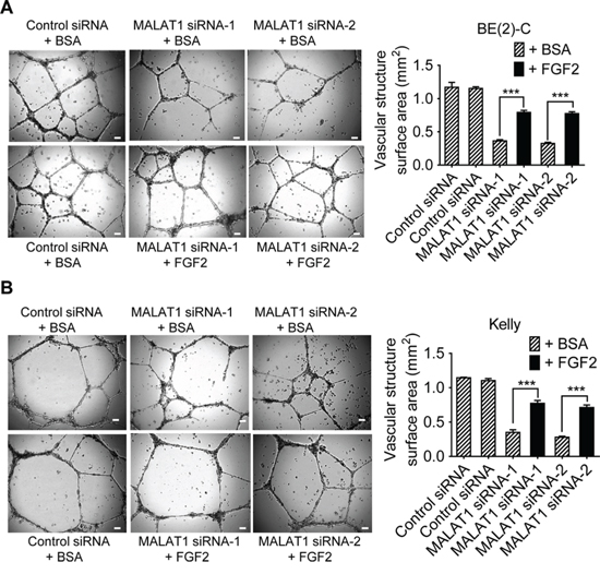 MALAT1-mediated FGF2 protein secretion from neuroblastoma cells induces vasculature formation.