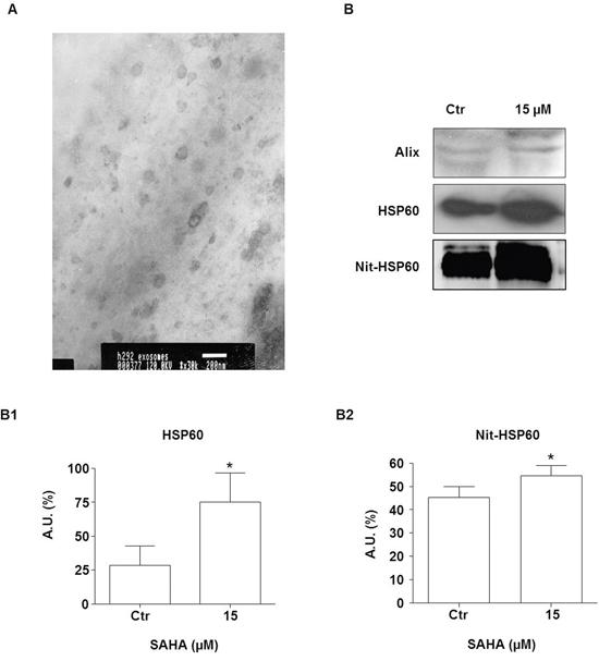 SAHA increases secretion of HSP60 via exosomes.