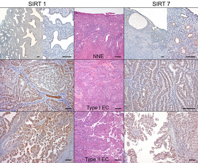 SIRT1 and SIRT7 protein immunoexpression in endometrial carcinomas and non-neoplastic endometria (Bar = 100 µm).
