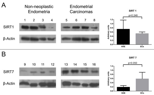 Western-blot analysis for SIRT 1 (A) and SIRT 7 (B) proteins using non-neoplastic endometria (NNE) and endometrial carcinoma (EC) samples.