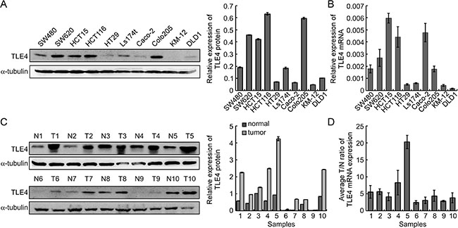 TLE4 expression is evaluated in CRC cell lines and primary human CRC.