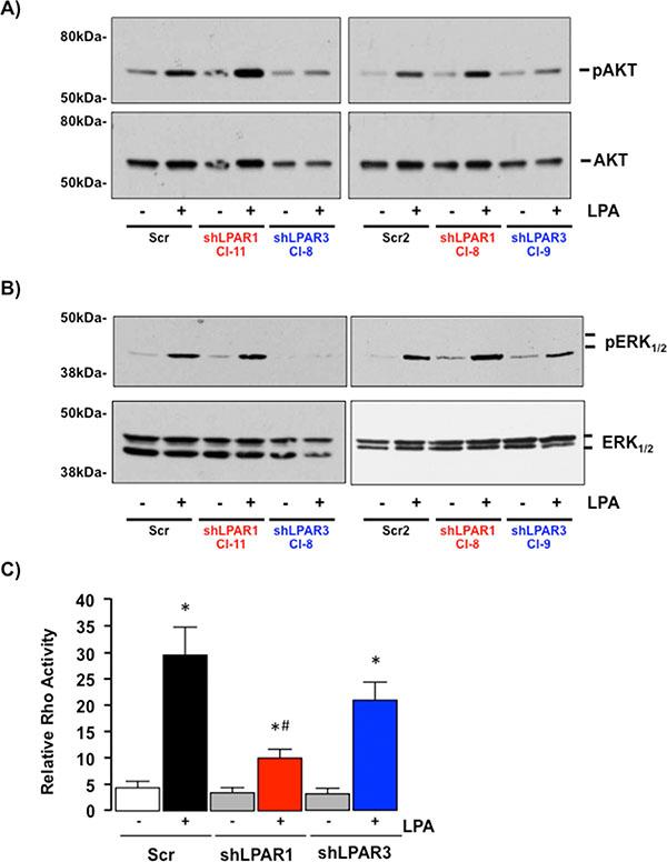 LPAR1 and LPAR3 regulate different intracellular signaling cascades in SKHep1 cells.