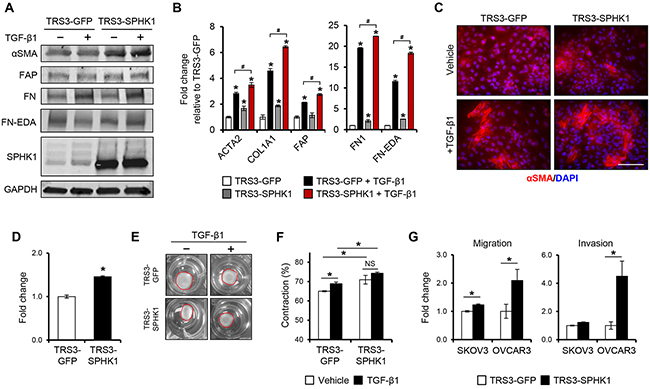 Figure 4. Overexpression of SPHK1 in ovarian fibroblasts enhances TGF-β1-induced myofibroblast marker expression and their ability to promote tumor cell migration and invasion.
