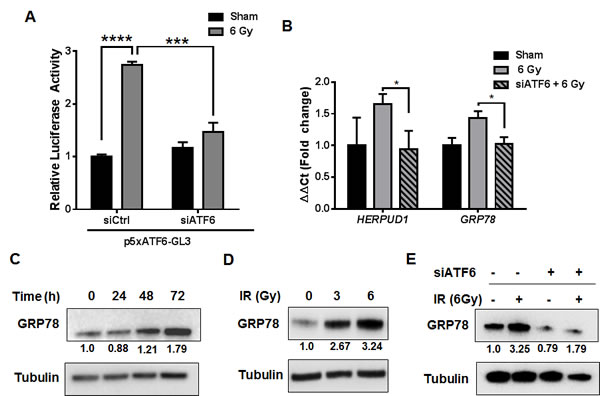 Activation of the ATF6 pathway in glioblastoma by ionizing radiation.