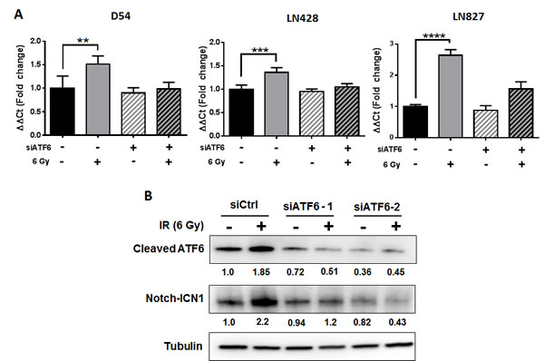 ATF6 contributes to regulation of NOTCH1 gene expression.